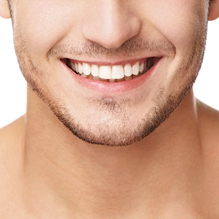 Close up white smile of a young man with a beard